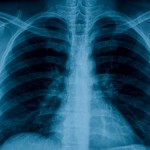 Chest X-ray Oct. 27, 2011 (2)